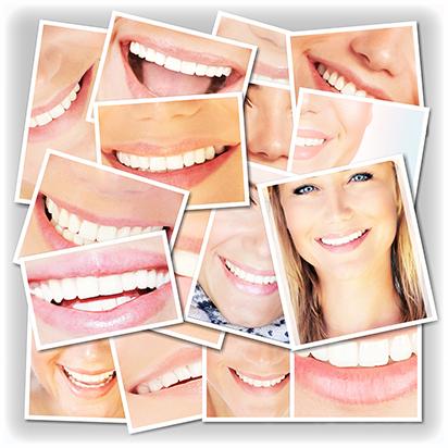 Cómo mejorar tu sonrisa con la Estética Dental