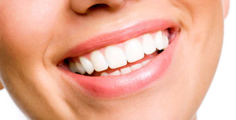 ¿Cuáles son los peligros de la blancorexia dental?