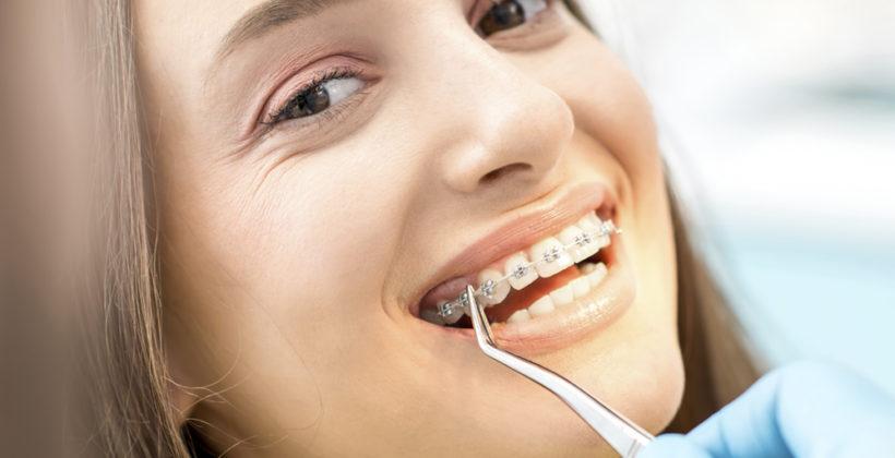 Qué tipo de ortodoncia te conviene